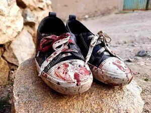 عکس/ انفجار مرگبار مقابل دبیرستان دخترانه در کابل