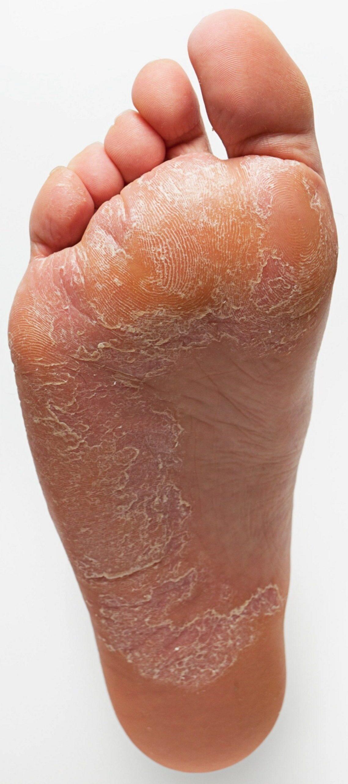شکل و رفتار پاهای شما نشان دهنده کدام بیماری است؟