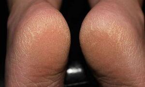 بهترین راهکارها برای از بین بردن پینه پوست