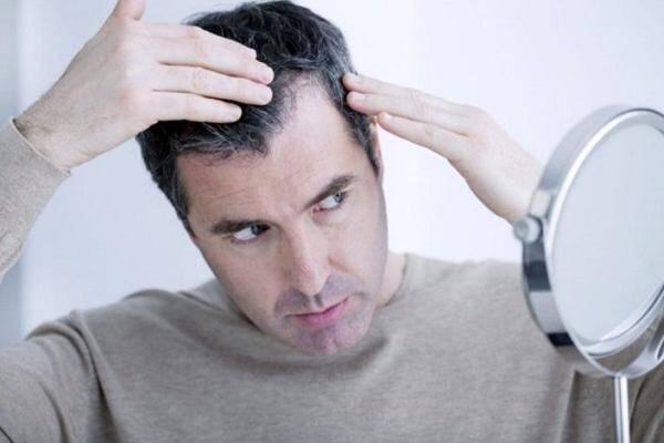 ریزش موی ناشی از ویروس کرونا,ریزش مو بر اثر کرونا
