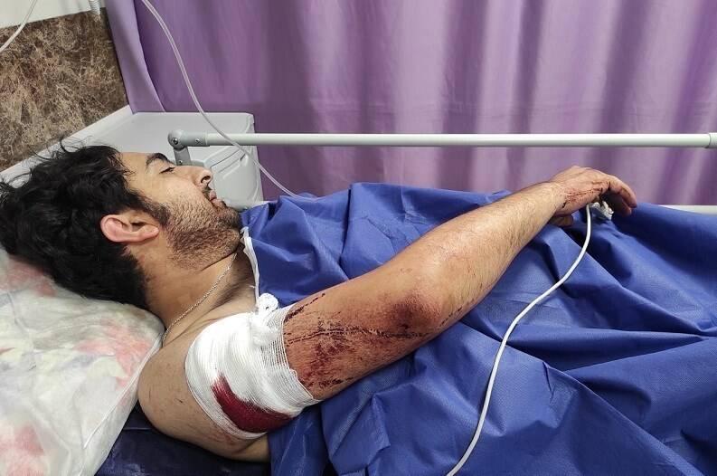 زورگیری خونین از یک عکاس خبری در تهران +عکس