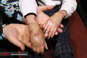 تولید ترمیمکننده زخم بیماران پروانهای در ایران