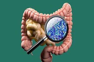 میکروبهای روده بر شدت سکته مغزی تاثیر دارد