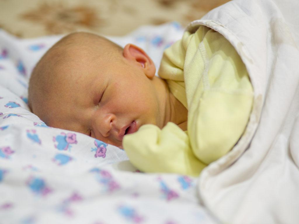 زردی نوزاد چیست و چگونه درمان میشود؟