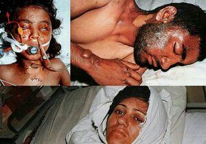 جنایت آلمان در بمباران شیمیایی سردشت+ فیلم