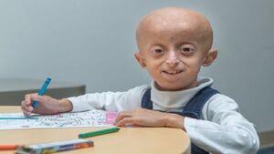 دختربچه 10 ساله بر اثر پیری درگذشت + عکس