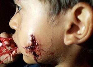 حمله سگ خانگی به کودک خردسال+ فیلم