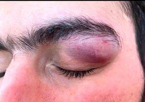 حمله با چاقو به چشمان یک پزشک در بندرعباس +عکس