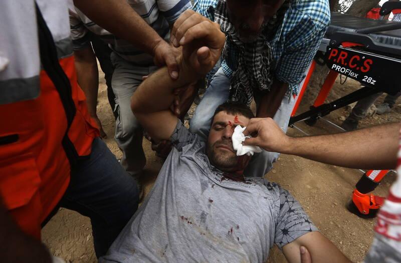 شهادت نوجوان فلسطینی/ مجروح شدن ۳۲۰ نفر در جنوب نابلس