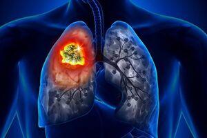 اینفوگرافیک/ مهمترین نشانههای سرطان ریه