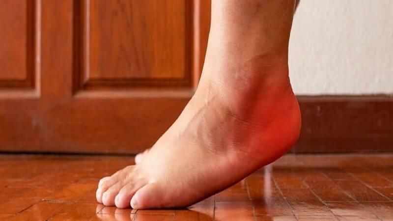 پا،درد،پاشنه،كف،قوس،التهاب،ساختاري،ورزش،مشكلات،فشار