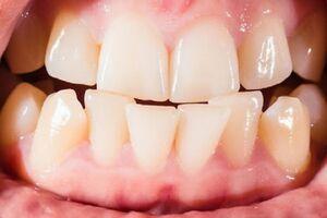 رعب آورترین عوارض تراکم و فشردگی دندانها