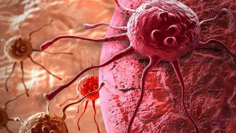 تومورهای خوش خیم و بدخیم را بشناسید