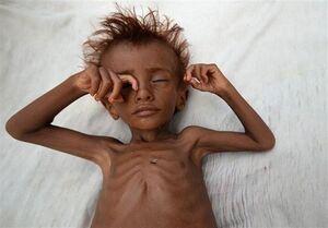 ۱۶ میلیون یمنی در آستانه قحطی هستند