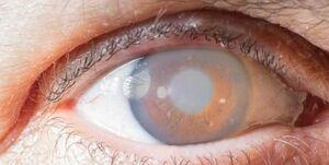 قرنیه چشم