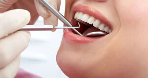 آثار مخرب سفید کردن دندان