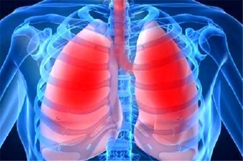 سرطان،ريه،سيگار،دخانيات،ترك،عوامل،مصرف،استعمال،بيماري،الكتري ...
