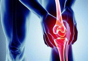عرضه داروی ایرانی کاهش درد مفاصل
