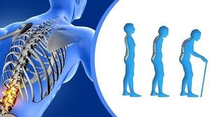 چند نکته ساده و کاربردی برای مقابله با پوکی استخوان