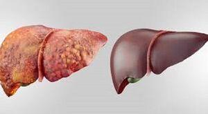 علل اصلی شیوع خاموش بیماری کبد چرب چیست؟