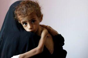 منابع مالی برای تغذیه مردم یمن رو به اتمام است