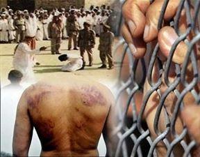 بخشی از مستندات شکنجه های هولناک زندانی های رژیم سعودی / بماند
