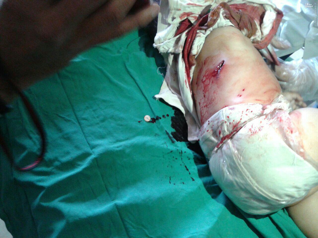 نوزاد 3ماهه شکار تک تیراندازان ارتش آزاد در فوعه+عکس
