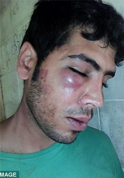 Image result for کتک خوردن شدید 2 پناهجوی ایرانی توسط پلیس استرالیا
