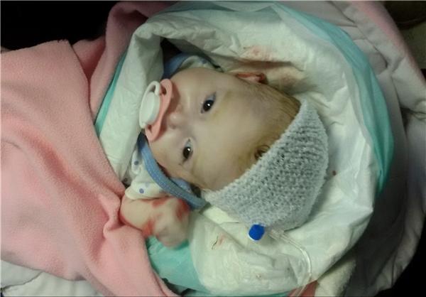 جسد بقچهپیچ شده الینا/ تصاویری که شاید مسئولان را بیدار کند (16+)