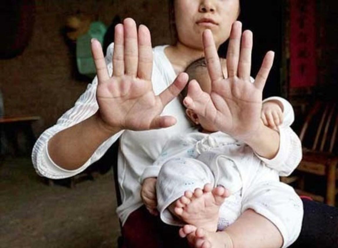 تولد پسری با 31 انگشت + عکس