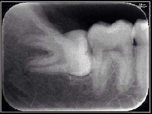 نمایی از یک دندان بی عقل به نام دندان عقل