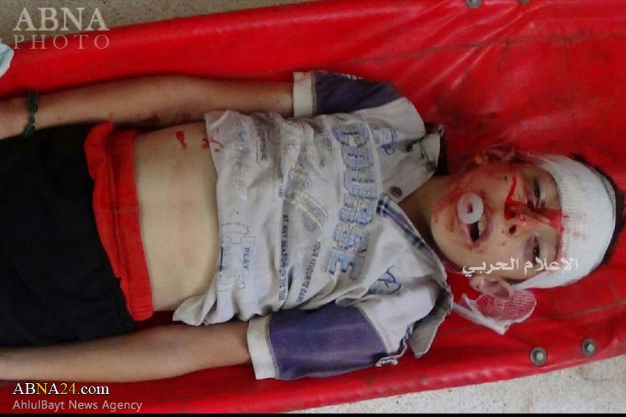 شهادت یک کودک شیعه در شهرک فوعه+ عکس