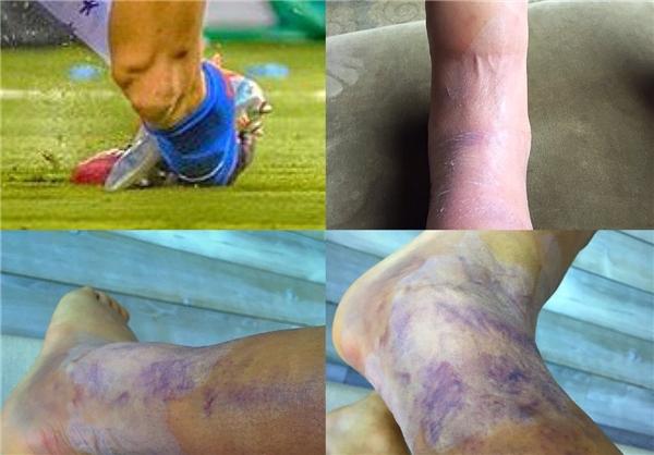 ساق پای سانچز پس از فینال کوپا آمریکا+عکس