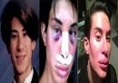 گشت و گذاری در کلینیکهای زیبایی مردانه/ از عمل بینی با وام قرضالحسنه تا رونق «جراحی لبخند»