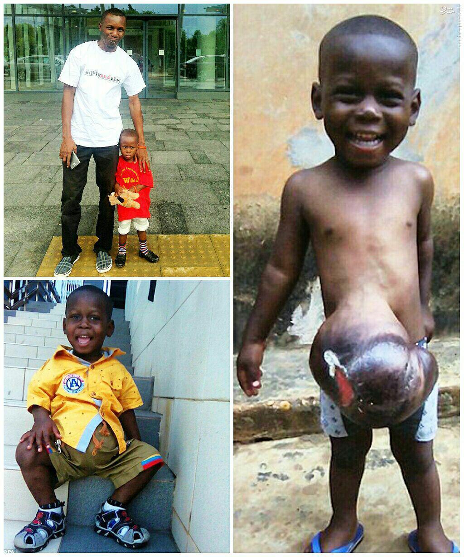 عکس/ بیماری نادر پسر سه ساله