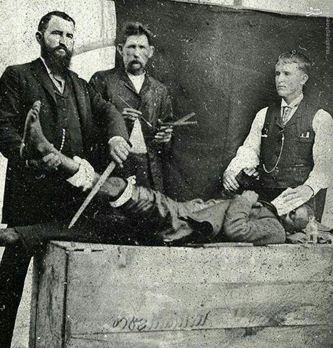 عکس/ بیهوش کردن بیماران در 120 سال پیش