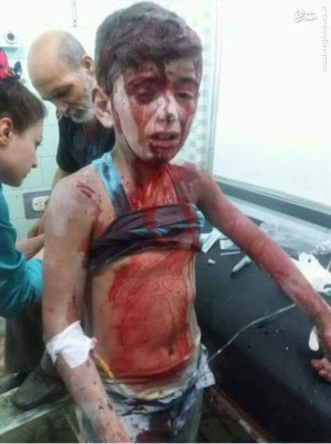 بمباران شیمیایی محله العامریه حلب+عکس