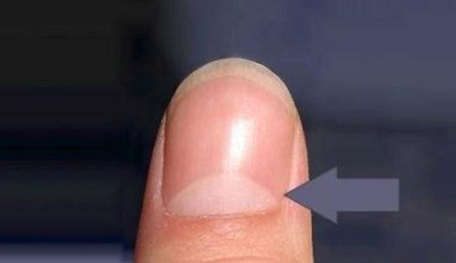 نتیجه تصویری برای راز هلال سفید انتهای ناخن