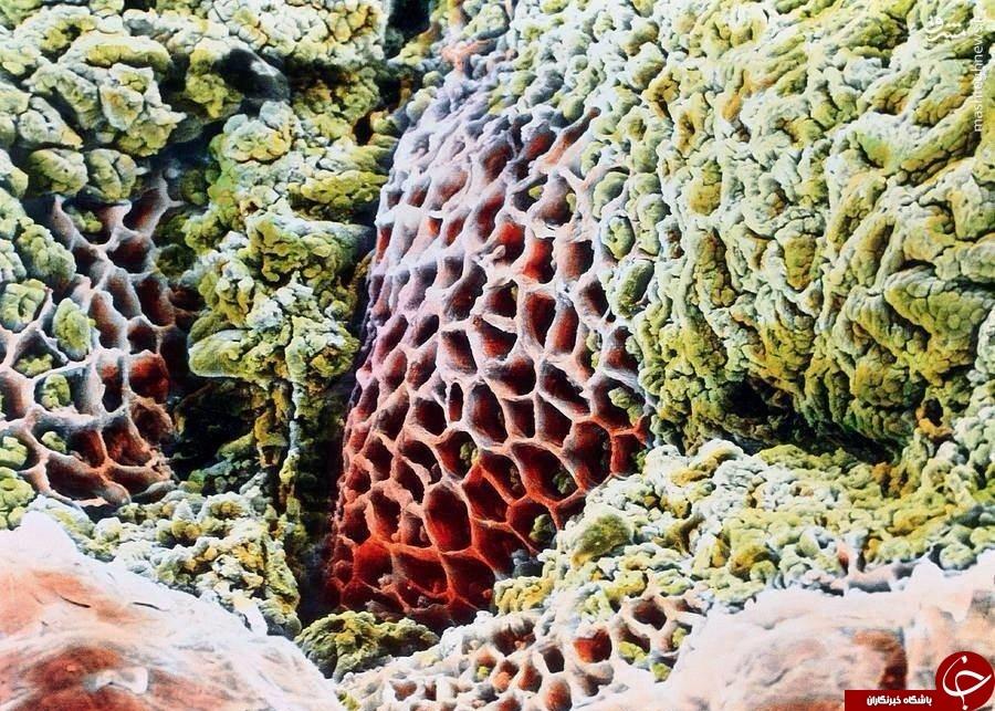 عکس میکروسکوپی از زخم معده