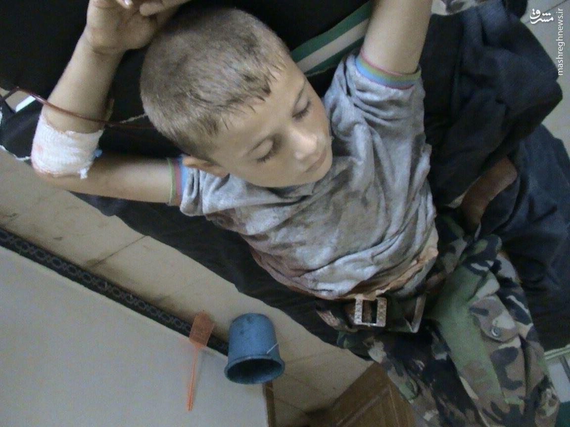 طفل 7 ساله شکار تروریستها در فوعه و کفریا+عکس