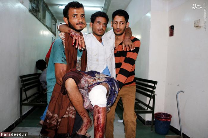 یکی از مجروحان حملات نیروهای طرفدار رئیس جمهور مستعفی با جبهه مقاومت مردمی در