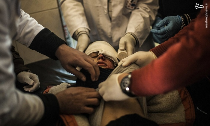 درمان پسر موصلی که از ناحیه چشم توسط نیروهای داعشی زخمی شده است