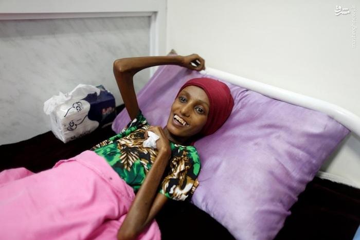 سوءتغذیه زن مقاوم یمنی در شرایط انفعال سازمانهای بینالمللی مقابل حملات عربستان به این کشور