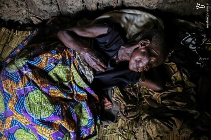بیمار مبتلا به تب مالاریا در جمهوری دموکراتیک کنگو