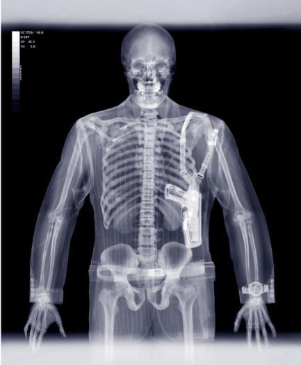 تفسیر عکس رادیولوژی ریه