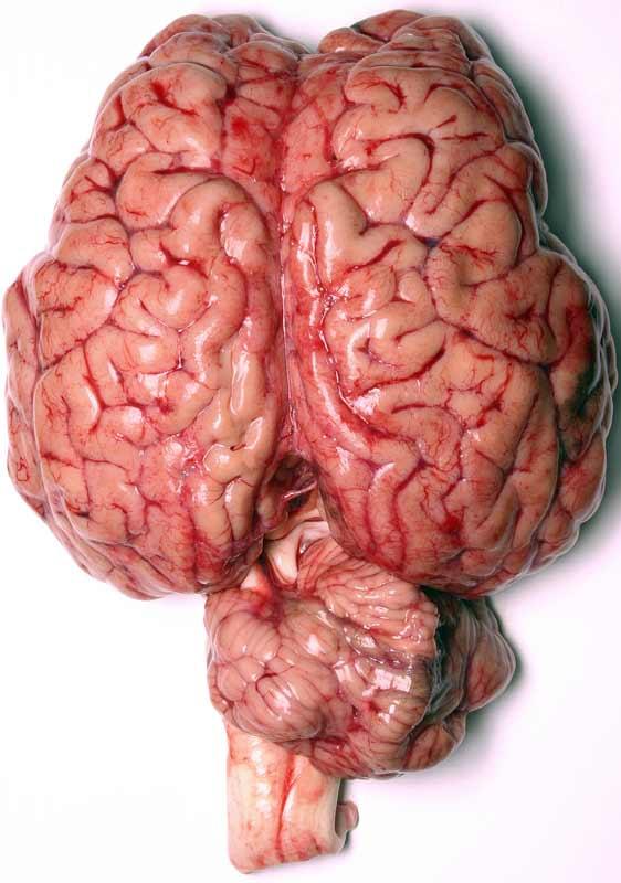 عمومی - در مورد مغز انسان چه میدانید؟