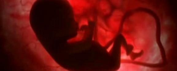 وضعیت خانواده در غرب همجنس گرایی فساد جنسی در اروپا فساد جنسی در آمریکا فساد اخلاقی در غرب عکس همجنسبازها عکس همجنس بازی زندگی در اروپا زن همجنس باز رابطه جنسی در آمریکا دختر همجنس باز حامیان همجنس بازی جایگاه خانواده در غرب تفاوت همجنسگرایی و همجنس بازی تجاوز جنسی در غرب تجاوز جنسی در آمریکا ازدواج همجنس باز آزادی زنان در غرب Homosexuality