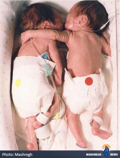 عکس/نوزادی که خواهر دوقلوی خودرا نجات داد