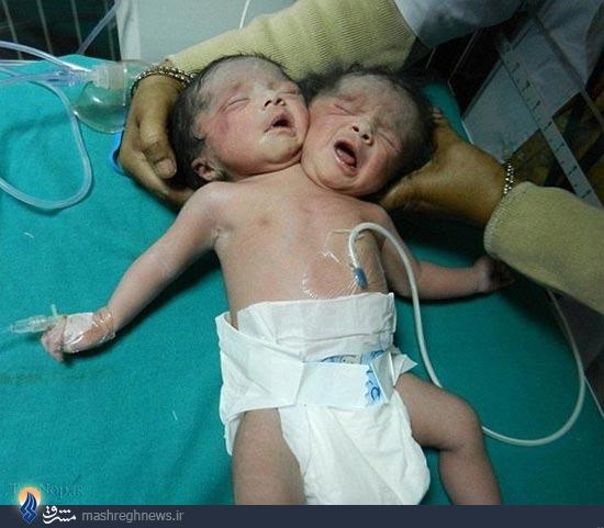 تولد کودک دوسر در هند +عکس