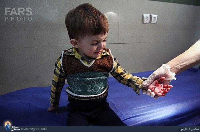 عکس/ کودک مجروح چهارشنبه سوری